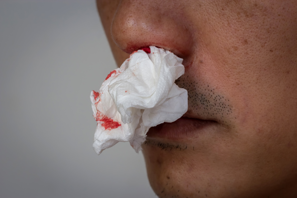 Používáním Poppers riskujete poškození sliznice nosu