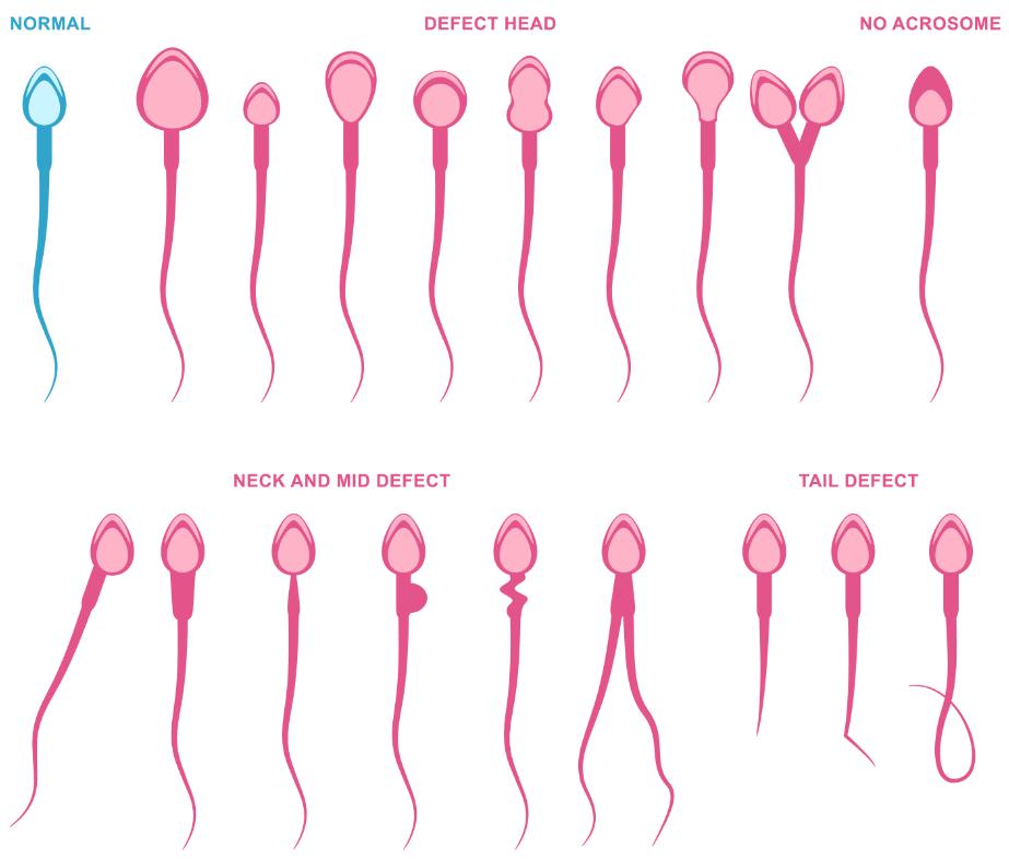 deformace spermií
